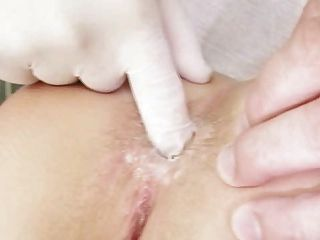 Redhead Girl Pussy Examination By Kinky Gyno Doctor