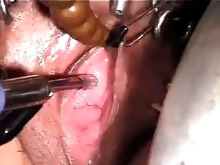 Urethra Insertion Orgasm Wf